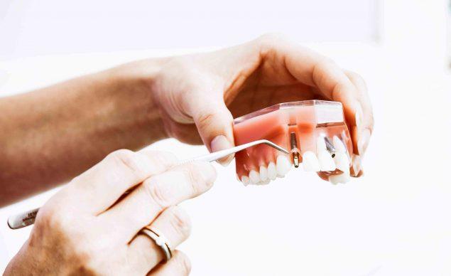 Estudiar Higienista Dental