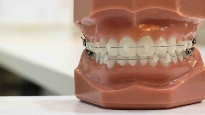 higiene bucodental a distancia