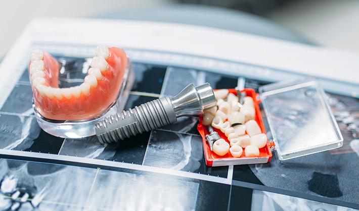 sueldo de un protésico dental