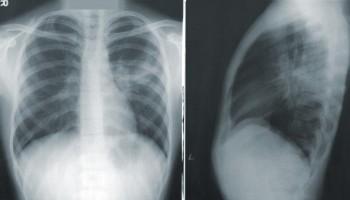 ¿Cómo estudiar diagnóstico por imágenes a distancia?