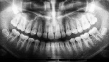 Historia de la radiografía: el origen de la imagen diagnóstica