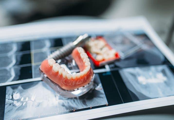 sueldo protesis dentales